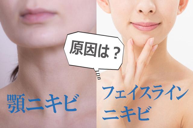 ニキビの場所と原因|顎ニキビ・フェイスラインニキビの原因