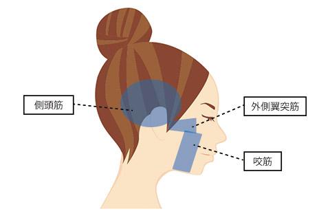 頬のたるみの原因:咀嚼筋