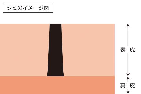 シミのイメージ図