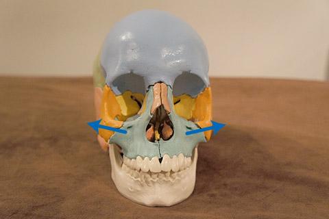 上顎骨の歪み