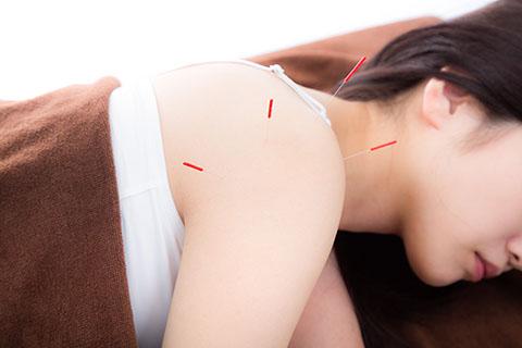 肩こりに針は効くの?肩こりにおすすめの鍼を刺す場所とは?