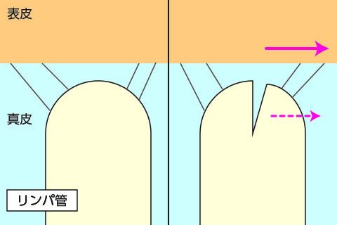 毛細リンパ管のイメージ